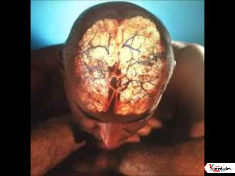 derrame cerebral1
