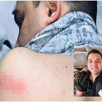 Josi Cuen exvocalista de La Arrolladora sufre accidente por huracán Pamela